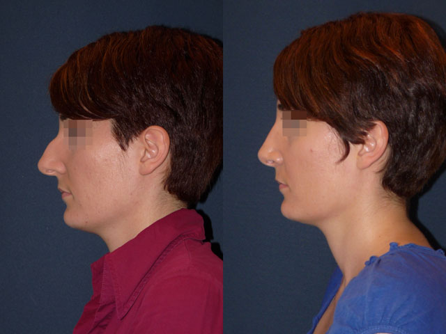 rhinoplastie avant après