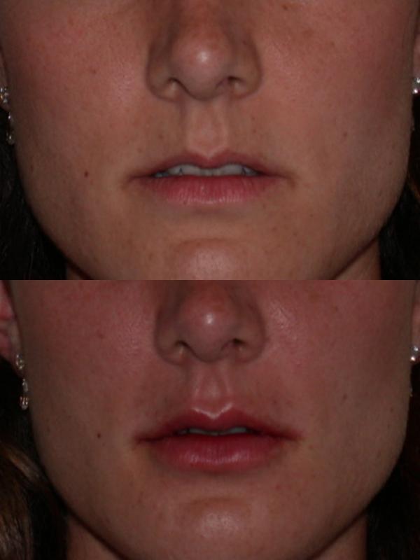 injections acide hyaluronique avant apres