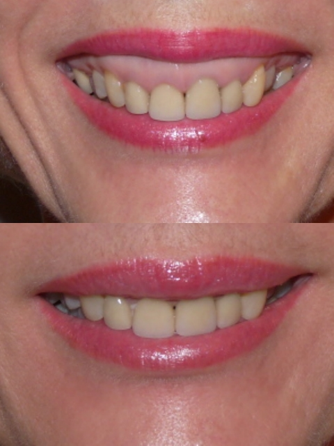 SOURIRE GINGIVAL (2).jpg