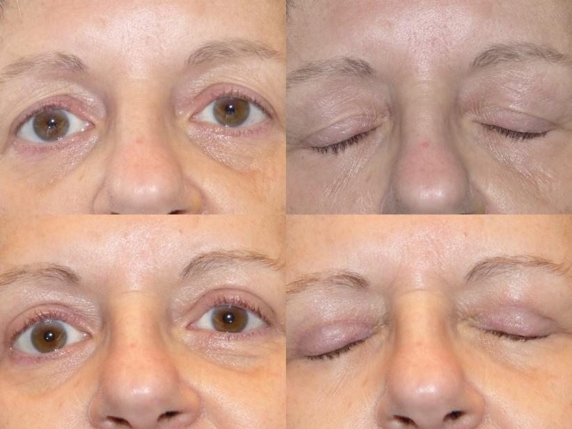 avant après blépharoplastie