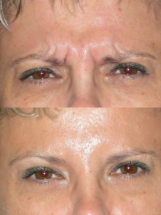 botox avant après
