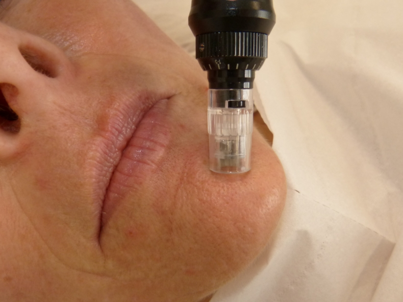 microneedling resultat photo