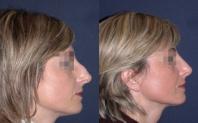 avant après rhinoplastie
