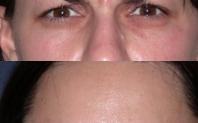 injections botox avant apres