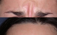 injection botox avant après