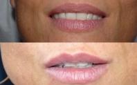 avant après injections lèvres acide hyaluronique