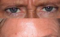avant après injection botox