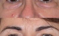photo avant après blépharoplastie