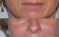 injection acide hyaluronique avant après