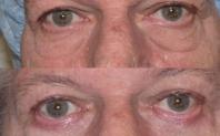 blepharoplastie avant après
