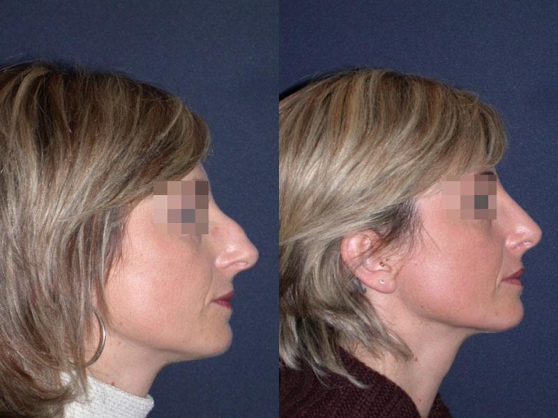 La chirurgie du nez docteur gilles korb - Bosse sur le nez apres coup ...